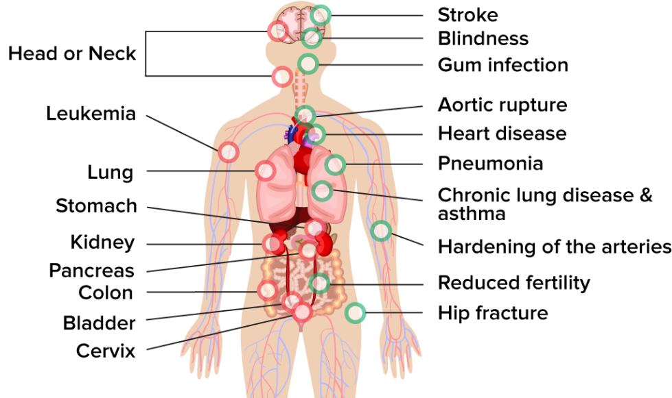 Human body with the areas affected by Smoking related diseases
